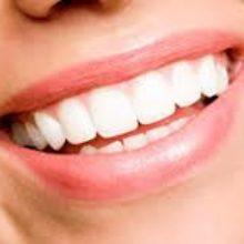 Сохраните улыбку красивой
